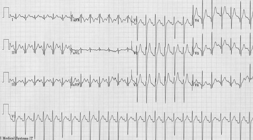 121_Sinus-tachycardia.jpg94715