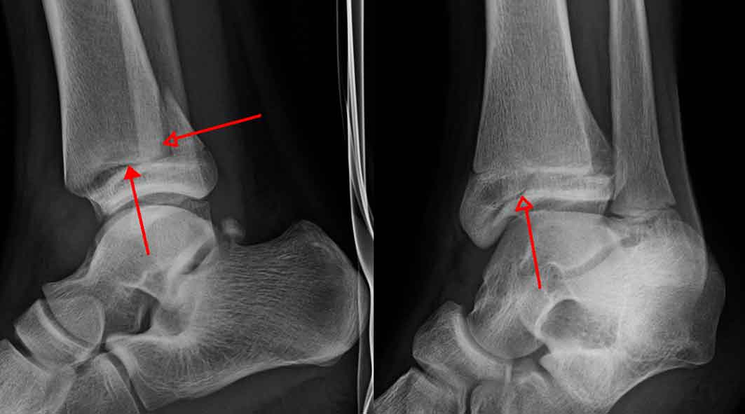 Ankle-Fracture.jpg94711