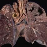 Tuberculosis(TB) Causes