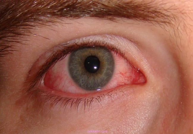 suffering from Night blindness and poor vision at night - ParsiTeb ...