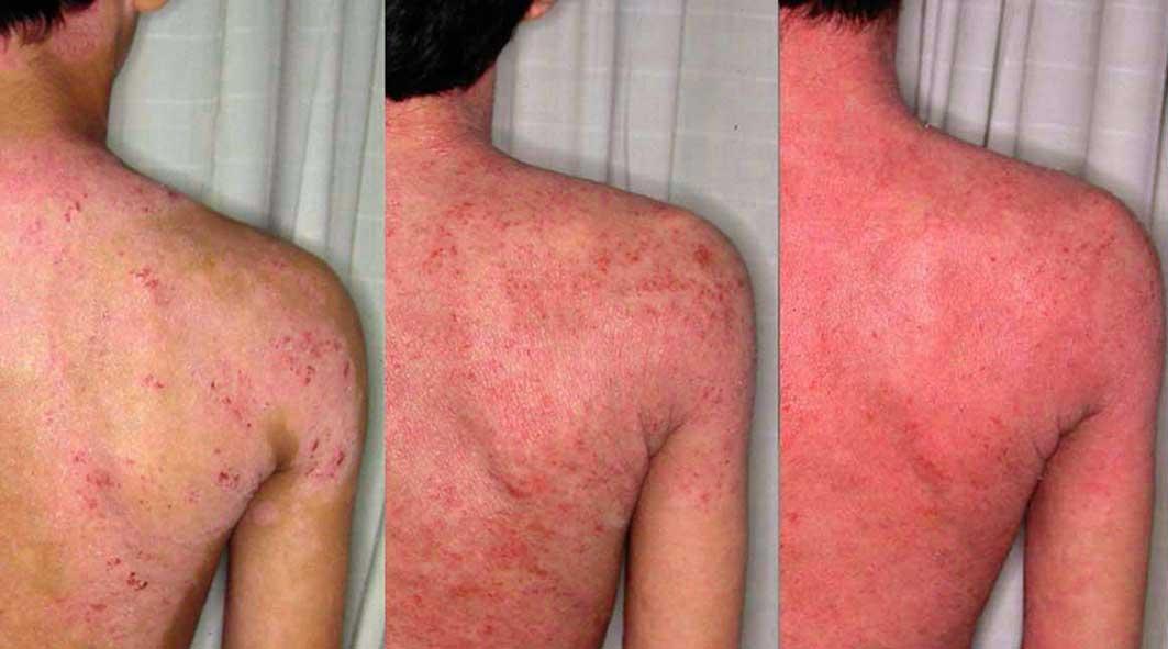 eczema1.jpg9479