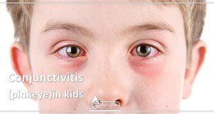 Conjunctivitis (pinkeye)in kids