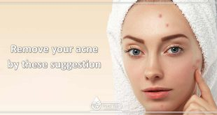 Remove your acne by these suggestion