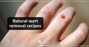 Natural wart removal recipes