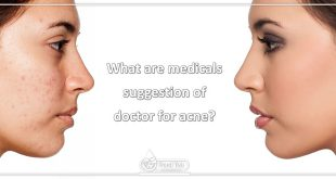 What are medicals suggestion of doctor for acne?