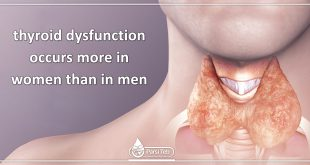 thyroid dysfunction occurs more in women than in men.