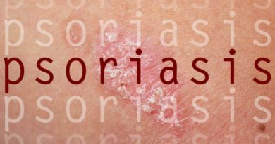 5tips to control psoriasis