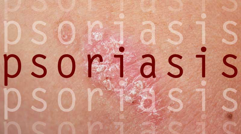 5tips to control psoriasis - ParsiTeb :: Herbal Medicine