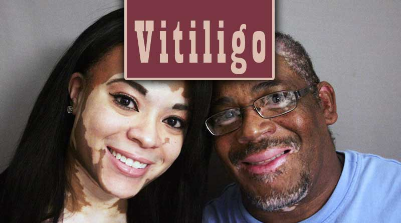 Vitiligo dating