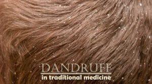 dandruff-in-traditional-medicine