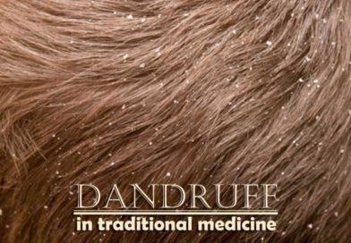 Dandruff in traditional medicine