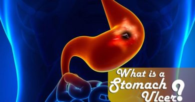 What is a stomach ulcer?