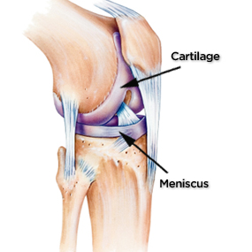 285x285_Severe_Knee_Pain_Slide_3