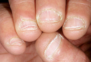 dermnet_photo_of_bitten_nails
