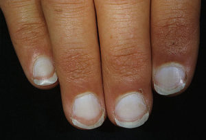 dermnet_photo_of_white_nails