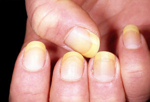 dermnet_photo_of_yellow_nails