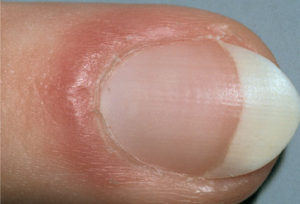 mh_photo_of_red_puffy_nail_fold