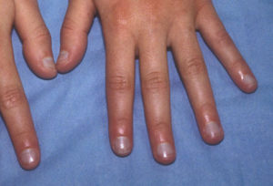 phototake_rm_photo_of_acrocyanosis_of_hands