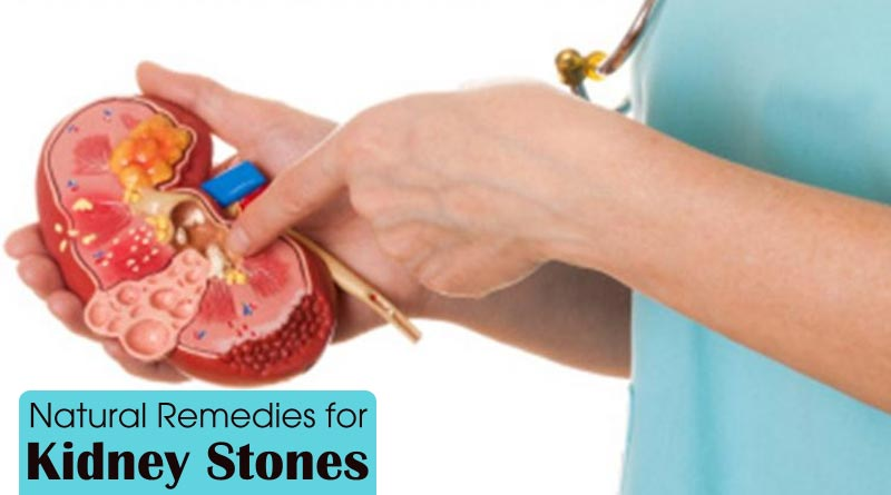10Natural-Remedies-for-Kidney-Stones