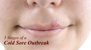 5-stages-of-a-cold-sore-outbreak