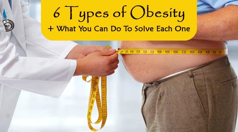 6-types-of-obesity