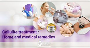 Cellulite treatment: Home and medical remedies