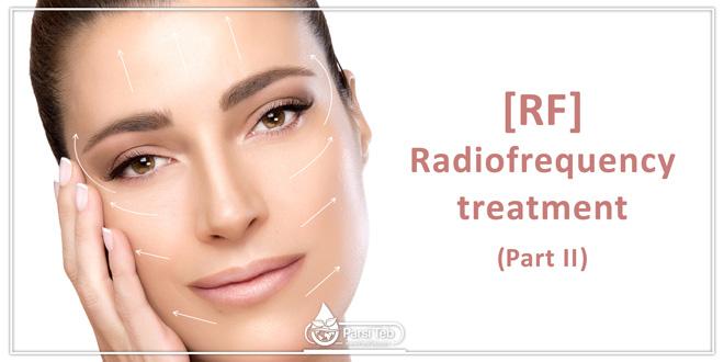 RF [Radiofrequency treatment] (Part II)
